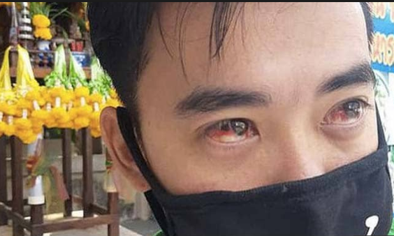 Bangkok's toxic air results in bleeding nose and red eyes among the civilians