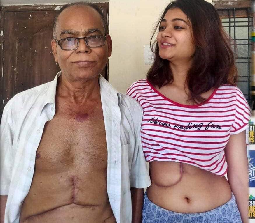 19 year old rekha dutta donated her liver to father