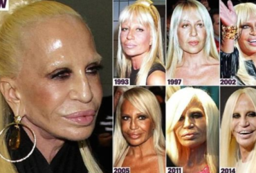 17 worst celebrities plastic surgeries fails, that would make you think twice before any injection